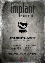 Implant pentru refuz, Opus, FacePlant