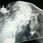 Tobosarul DOWN s-a insurat (foto)